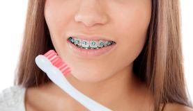 почистване на зъби с брекети