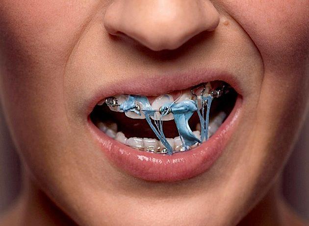 дъвка брекети